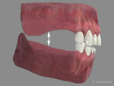Bite collapse is also known in dental terms as the loss of vertical dimension of occlusion