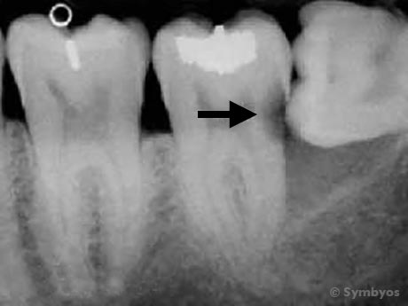 A dental periapical dental X-ray image showing tooth decay.