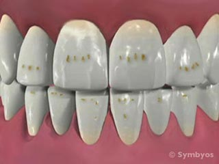 Brown spots and pitted irregular tooth enamel are commonly observed in vitamin D resistant rickets and renal failure.
